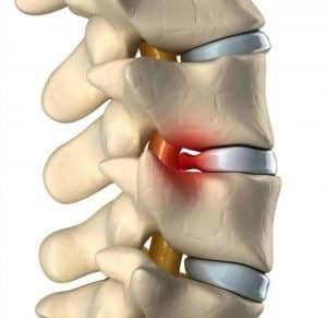 herniated-disc-bulding-disc-treatment