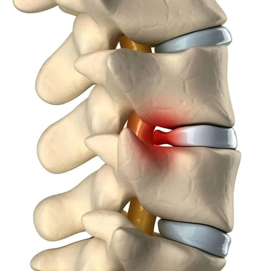 herniated-disc-bulding-disc-treatment