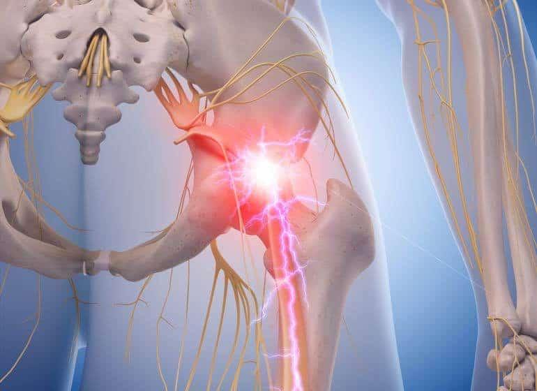sciatica-nerve-treatment-alaska