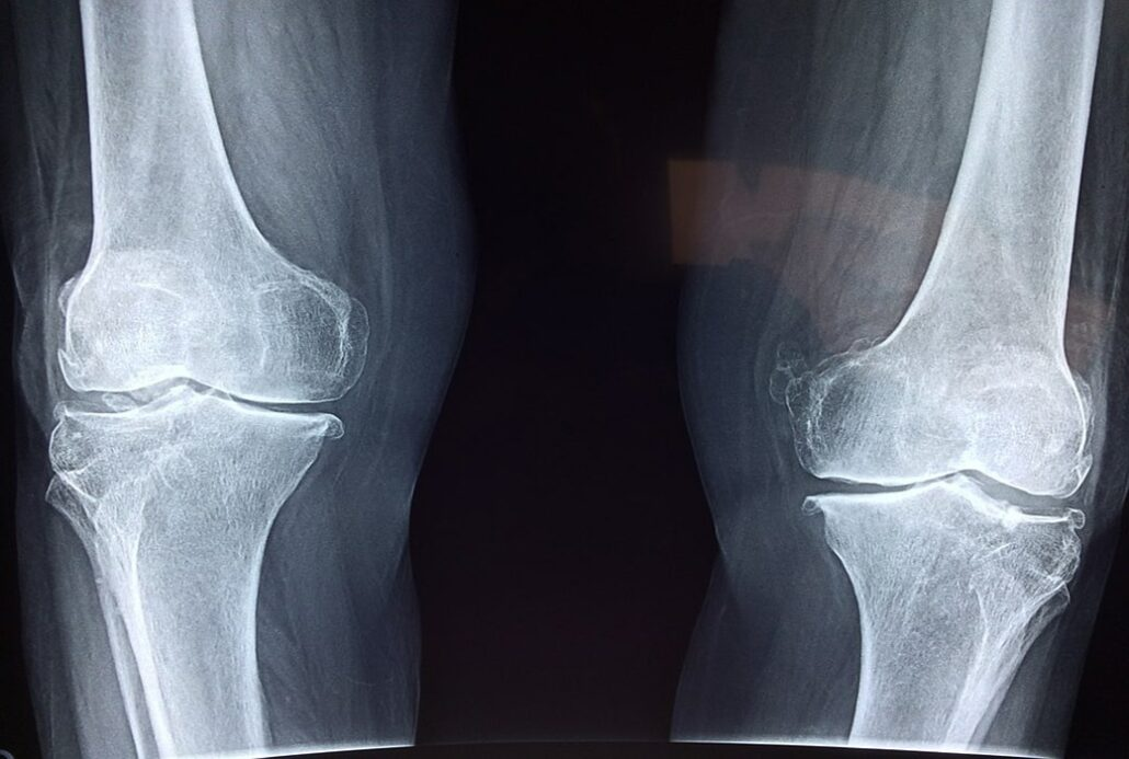 What are the Different Types of Bursitis?