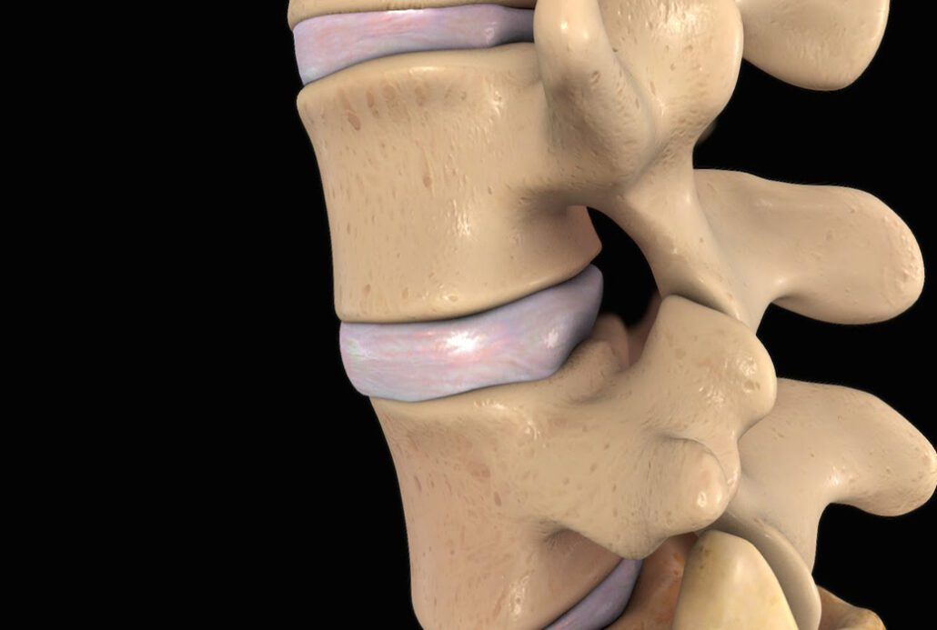 Diagnosing and Treating Disc Problems to Keep Spinal Discs Healthy