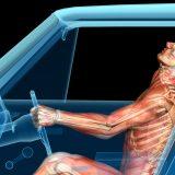 whiplash anatomy