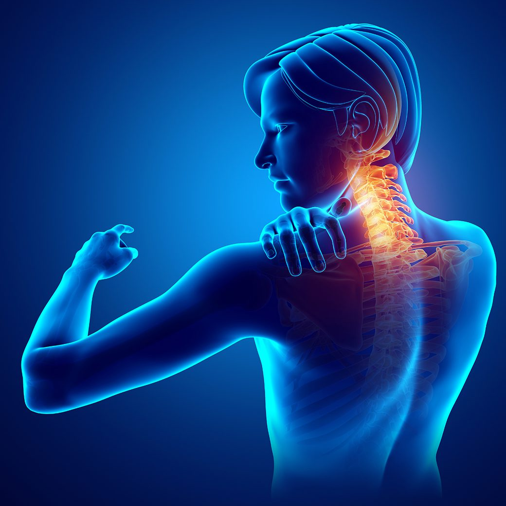 Can Chiropractic Care Help Arthritis in the Neck