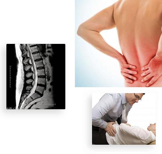 The Alaska Back Pain Protocol