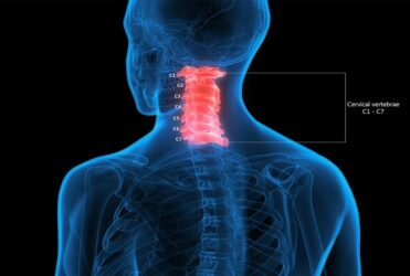 C1 and C2 Vertebrae Misalignment Symptoms