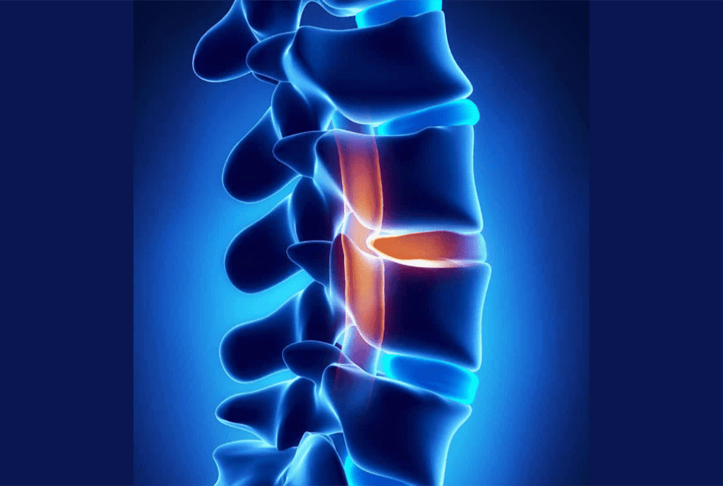 Herniated Disc Long Term Effects and Prognosis