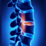 Herniated Disc in the Back and Neck Long Term Effects and Prognosis