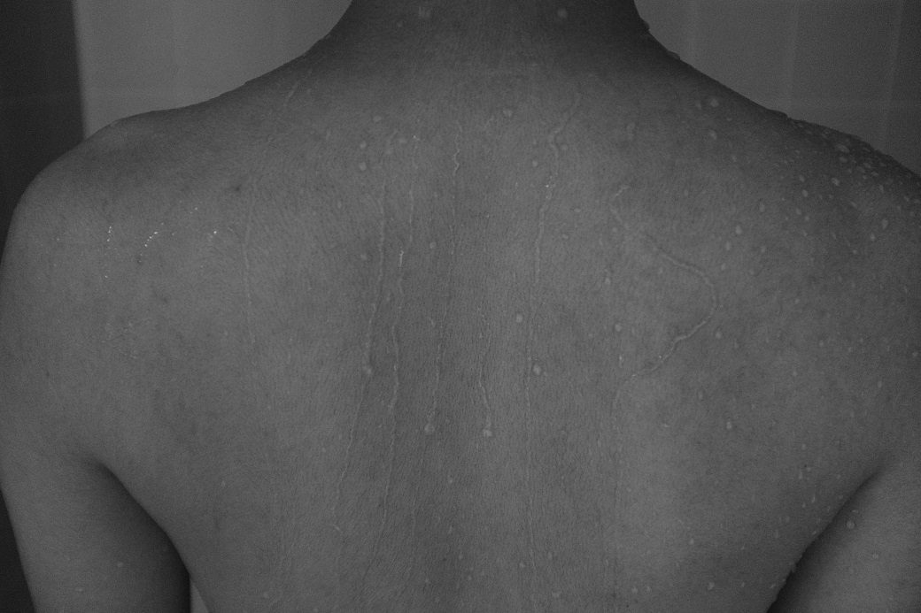Muscle Knot Symptoms