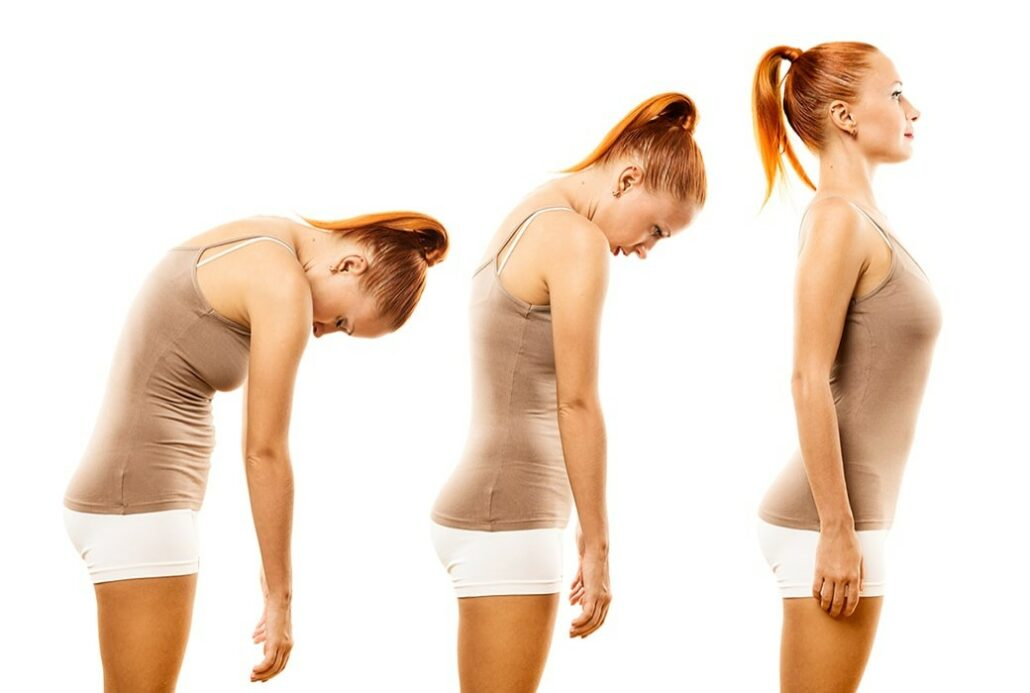 How Can a Chiropractor Help With Posture?