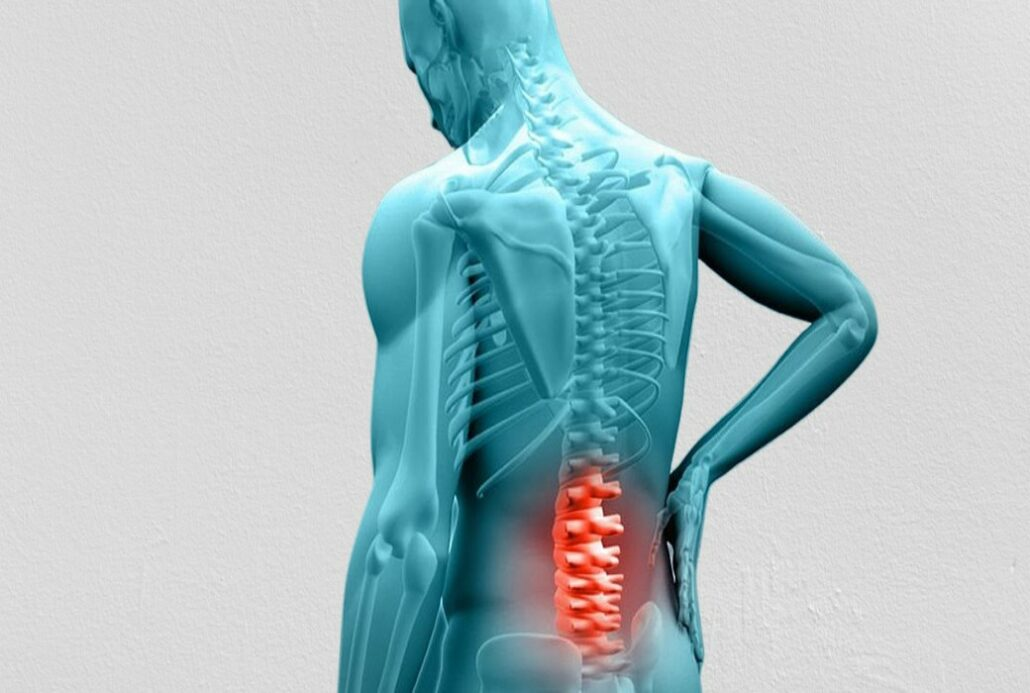 9 Things You Should Avoid With a Herniated Disc